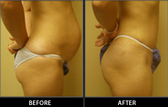 Abdominoplasty Patient 01