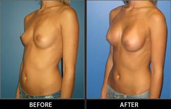 Breast Augmentation Patient 08
