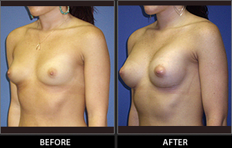Breast Augmentation Patient 11