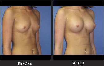 Breast Augmentation Patient 01