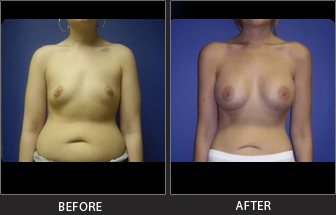 Breast Augmentation Patient 04