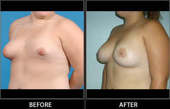 Specialty Breast Augmentation Patient 02