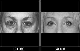 Brow Lift Patient 02