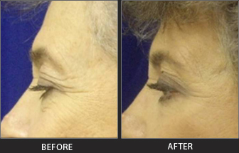 Brow Lift Patient 04