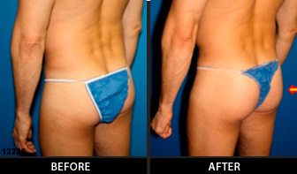 Gluteal Augmentation Patient 06